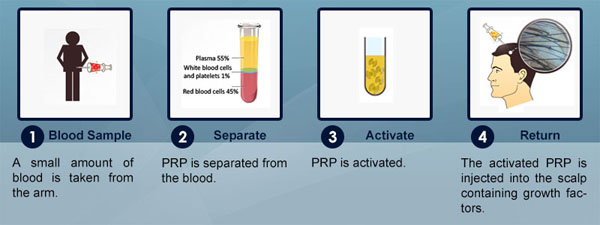 prp-therapy