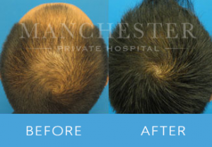 https://www.manchesterprivatehospital.co.uk/wp-content/uploads/2018/02/Hair-Transplant-1-300x208.png