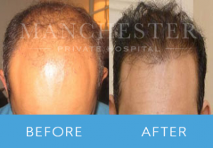 https://www.manchesterprivatehospital.co.uk/wp-content/uploads/2018/02/Hair-Transplant-3-300x208.png
