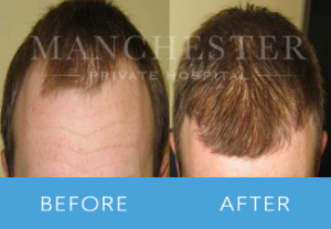 https://www.manchesterprivatehospital.co.uk/wp-content/uploads/2018/02/Hair-Transplant-4-300x208.png