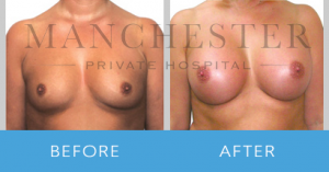 https://www.manchesterprivatehospital.co.uk/wp-content/uploads/2018/02/breast-enlargement-1-300x157.png