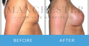 https://www.manchesterprivatehospital.co.uk/wp-content/uploads/2018/02/breast-enlargement-2-300x157.png