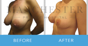 https://www.manchesterprivatehospital.co.uk/wp-content/uploads/2018/02/breast-reduction-1-300x157.png