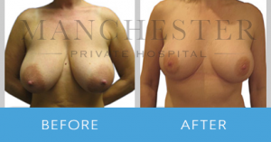 https://www.manchesterprivatehospital.co.uk/wp-content/uploads/2018/02/breast-reduction-2-300x157.png