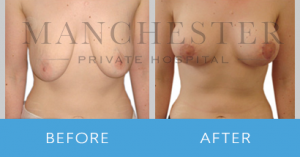 https://www.manchesterprivatehospital.co.uk/wp-content/uploads/2018/02/breast-uplift-1-300x157.png