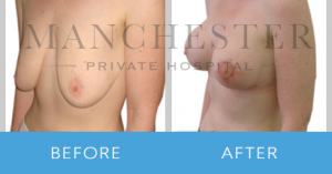 https://www.manchesterprivatehospital.co.uk/wp-content/uploads/2018/02/breast-uplift-2-300x157.png