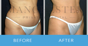 https://www.manchesterprivatehospital.co.uk/wp-content/uploads/2018/02/tummy-tuck-1-300x157.png