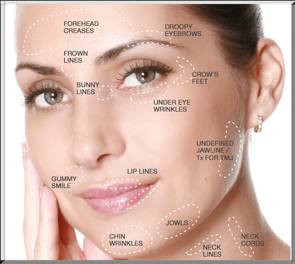 wrinkle-areas-treated