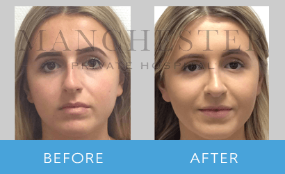 https://www.manchesterprivatehospital.co.uk/wp-content/uploads/2018/08/rhinoplasty-01.png