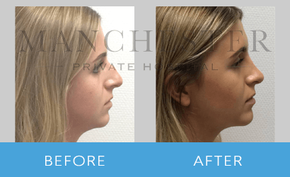 https://www.manchesterprivatehospital.co.uk/wp-content/uploads/2018/08/rhinoplasty-02.png