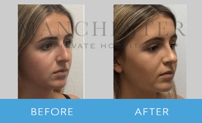 https://www.manchesterprivatehospital.co.uk/wp-content/uploads/2018/08/rhinoplasty-03.png