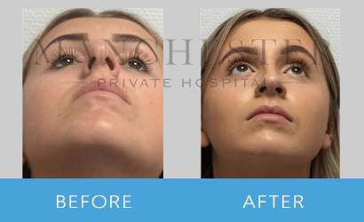 https://www.manchesterprivatehospital.co.uk/wp-content/uploads/2018/08/rhinoplasty-04.png