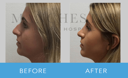 https://www.manchesterprivatehospital.co.uk/wp-content/uploads/2018/08/rhinoplasty-05.png