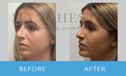 https://www.manchesterprivatehospital.co.uk/wp-content/uploads/2018/08/rhinoplasty-06.png