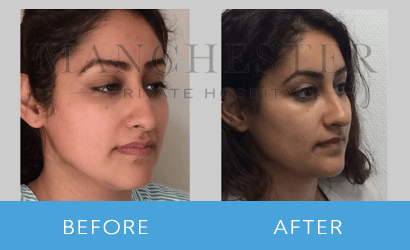 https://www.manchesterprivatehospital.co.uk/wp-content/uploads/2018/08/rhinoplasty-07.png