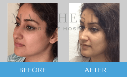 https://www.manchesterprivatehospital.co.uk/wp-content/uploads/2018/08/rhinoplasty-08.png