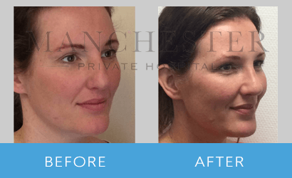 https://www.manchesterprivatehospital.co.uk/wp-content/uploads/2018/08/rhinoplasty-09.png