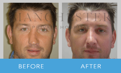 https://www.manchesterprivatehospital.co.uk/wp-content/uploads/2018/08/rhinoplasty-10.png