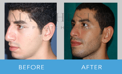 https://www.manchesterprivatehospital.co.uk/wp-content/uploads/2018/08/rhinoplasty-11.png