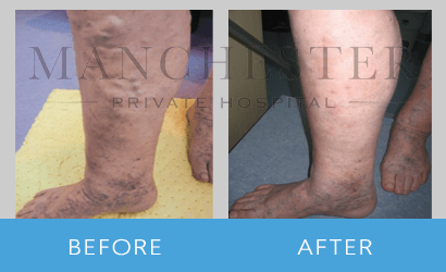 varicose veins-before-after