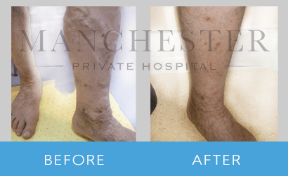 https://www.manchesterprivatehospital.co.uk/wp-content/uploads/2018/09/varicose-veins-02-2.png