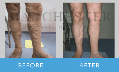 https://www.manchesterprivatehospital.co.uk/wp-content/uploads/2018/09/varicose-veins-03.png
