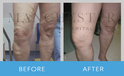 https://www.manchesterprivatehospital.co.uk/wp-content/uploads/2018/09/varicose-veins-04.png