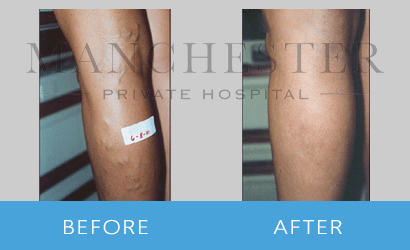 https://www.manchesterprivatehospital.co.uk/wp-content/uploads/2018/09/varicose-veins-05.png