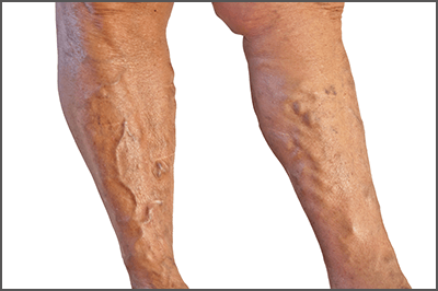 varicose-veins-removal