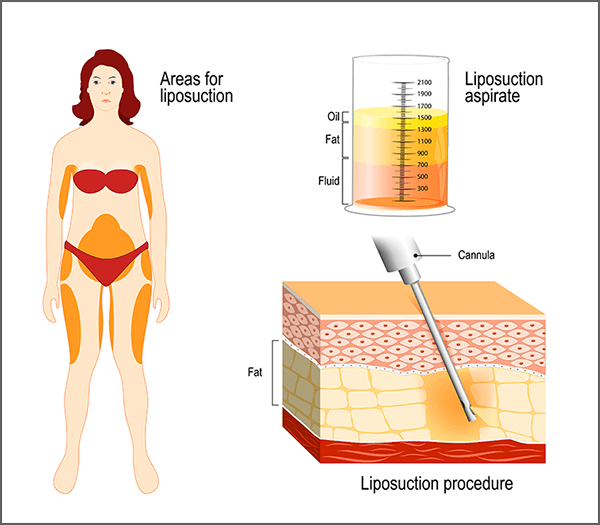 vaser-liposuction-procedure
