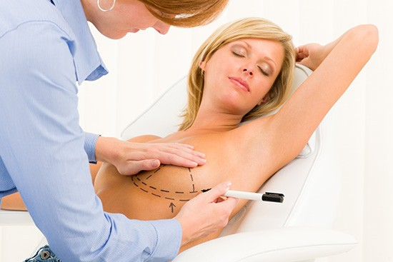 breast re-augmentation surgery