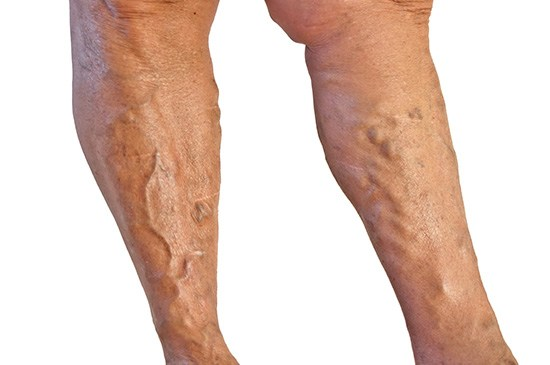 thread veins