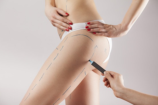 thigh lift procedure
