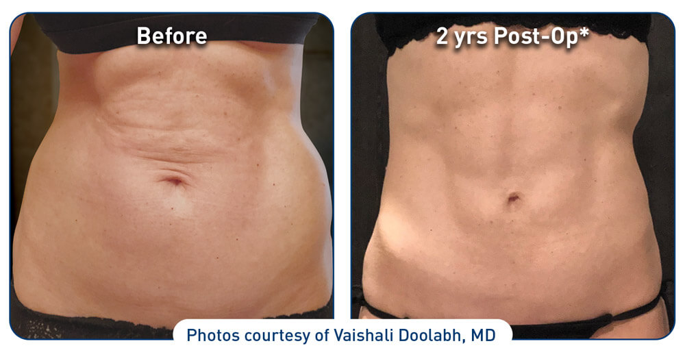 renuvion before and after abdominal