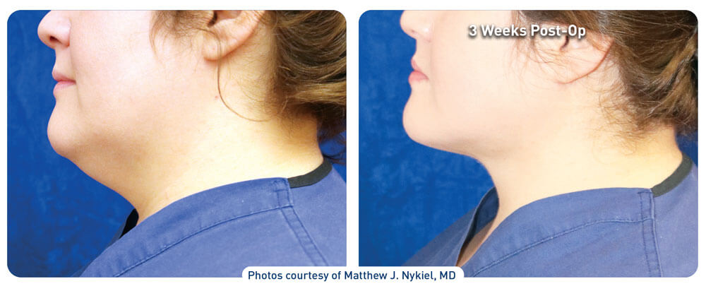j plasma neck before and after