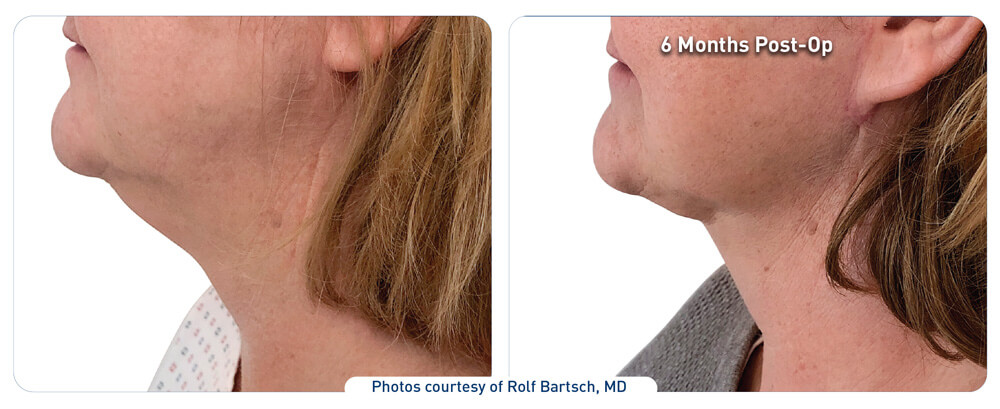 j plasma face before and after