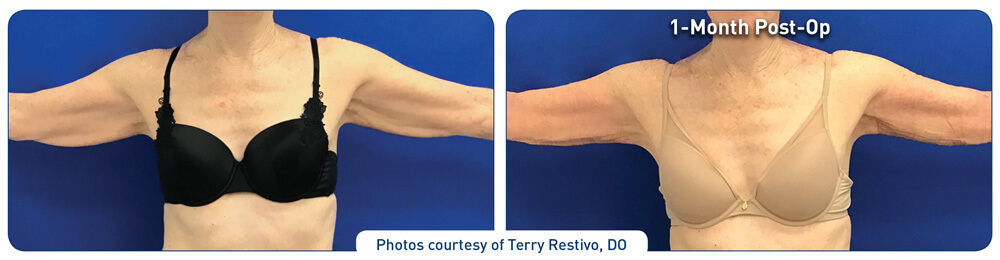 j plasma renuvion arm before and after