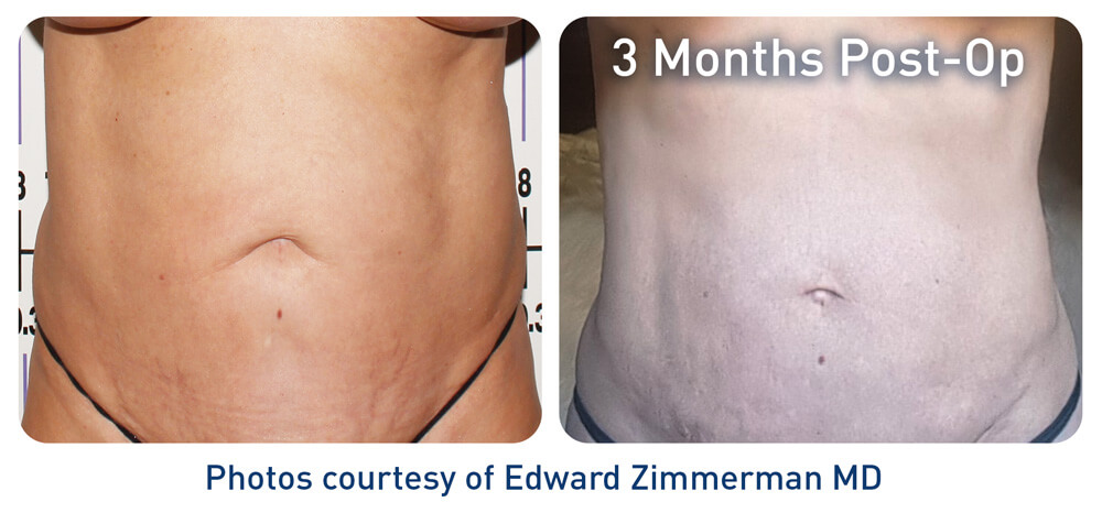 j Plasma Renuvion Abdominal(stomach) Before and After