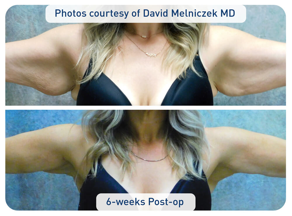 j plasma arm before and after