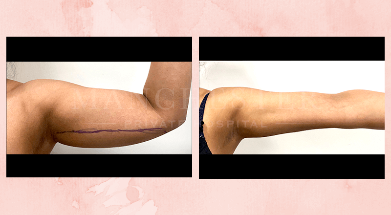 arm lift before and after uk 1