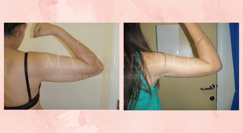 mini arm lift before and after pictures