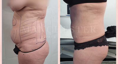 vaser lipo before and after